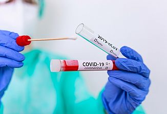 Trenutno epidemiološko stanje v FJK in Sloveniji
